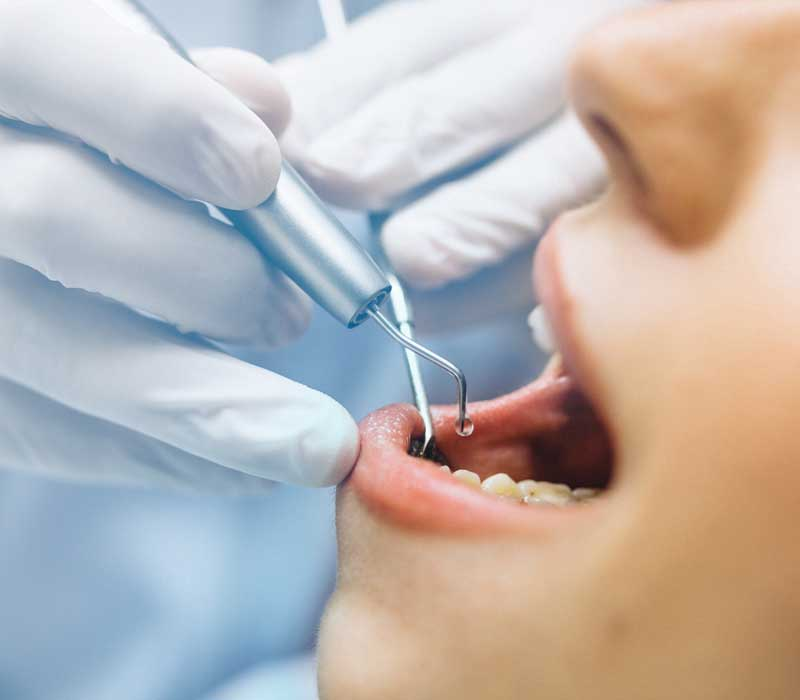 Deep-Cleaning-Periodontics-Dentist-in-Weston-Fl-Family-Cosmetic-Dentistry-800-x-700