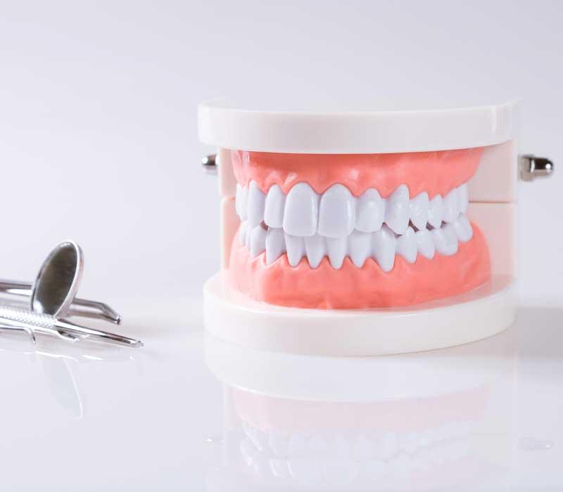 Dental-Bridge-Restorative-Dentistry-Dentist-in-Weston-Fl