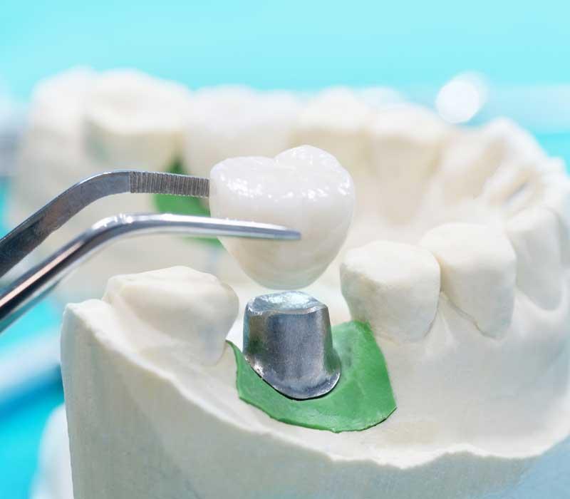 Dental-Crowns-Restorative-Dentistry-Dentist-in-Weston-Fl