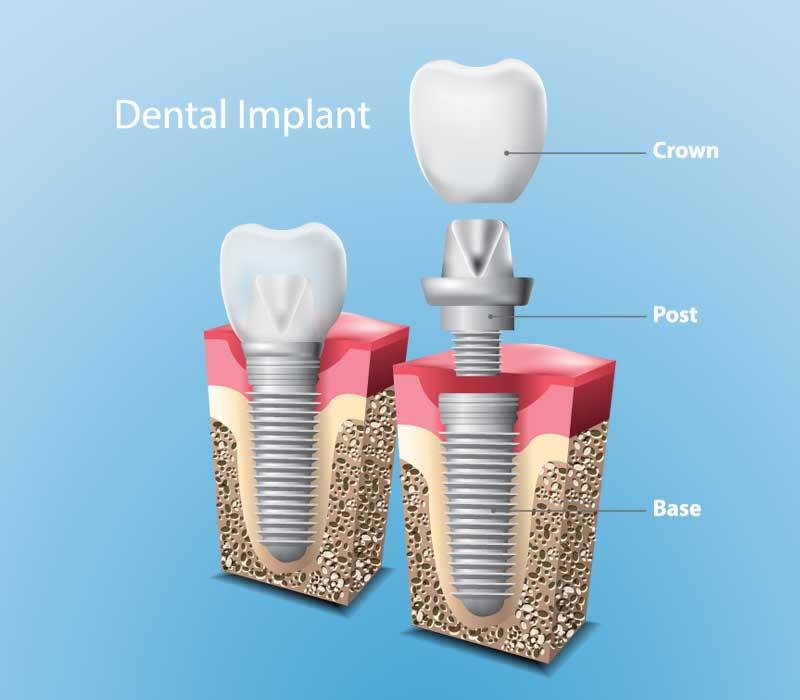 Dental-Implants-Restorative-Dentistry-Dentist-in-Weston-Fl