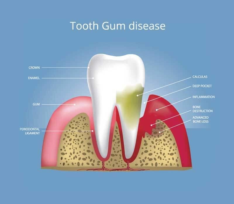 Gum-Disease-Periodontics-Dentist-in-Weston-Fl-Family-Cosmetic-Dentistry-800-x-700